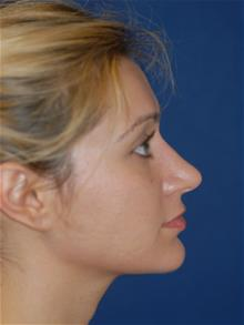 Rhinoplasty After Photo by Michael Eisemann, MD; Houston, TX - Case 28730