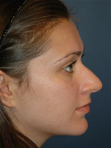 Rhinoplasty Before Photo by Michael Eisemann, MD; Houston, TX - Case 28730
