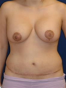 Tummy Tuck After Photo by Michael Eisemann, MD; Houston, TX - Case 28814