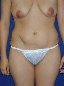 Tummy Tuck Before Photo by Michael Eisemann, MD; Houston, TX - Case 28814