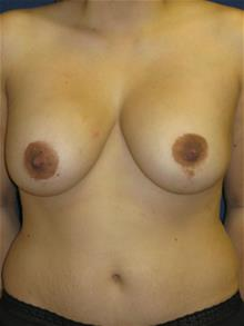 Breast Augmentation After Photo by Michael Eisemann, MD; Houston, TX - Case 28815
