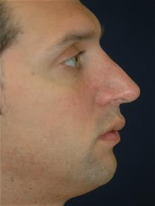 Rhinoplasty After Photo by Michael Eisemann, MD; Houston, TX - Case 28817