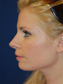 Rhinoplasty After Photo by Michael Eisemann, MD; Houston, TX - Case 28822