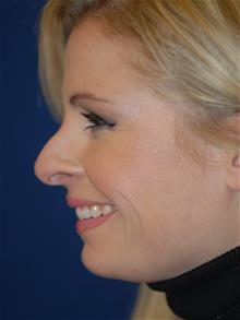 Rhinoplasty Before Photo by Michael Eisemann, MD; Houston, TX - Case 28822