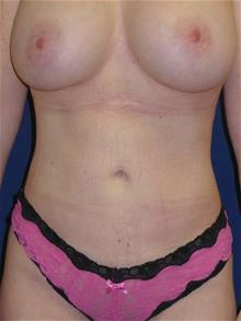 Liposuction After Photo by Michael Eisemann, MD; Houston, TX - Case 28827