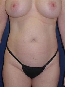 Liposuction Before Photo by Michael Eisemann, MD; Houston, TX - Case 28827