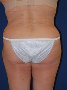 Tummy Tuck After Photo by Michael Eisemann, MD; Houston, TX - Case 28828