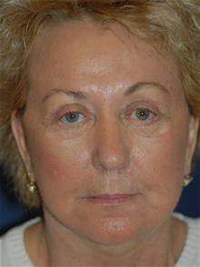 Facelift After Photo by Michael Eisemann, MD; Houston, TX - Case 28853