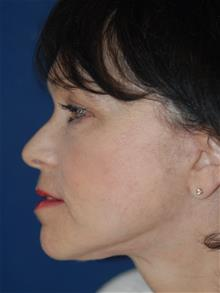 Facelift After Photo by Michael Eisemann, MD; Houston, TX - Case 28854