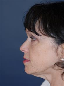 Facelift Before Photo by Michael Eisemann, MD; Houston, TX - Case 28854