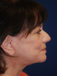Facelift After Photo by Michael Eisemann, MD; Houston, TX - Case 28884