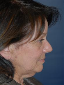 Facelift Before Photo by Michael Eisemann, MD; Houston, TX - Case 28884