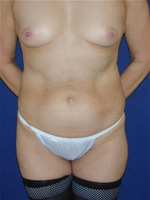 Tummy Tuck Before Photo by Michael Eisemann, MD; Houston, TX - Case 28885