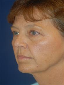 Facelift Before Photo by Michael Eisemann, MD; Houston, TX - Case 28985