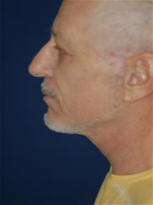 Facelift After Photo by Michael Eisemann, MD; Houston, TX - Case 28986