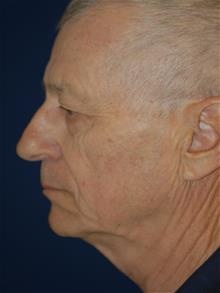 Facelift Before Photo by Michael Eisemann, MD; Houston, TX - Case 28986