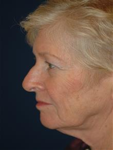 Facelift Before Photo by Michael Eisemann, MD; Houston, TX - Case 28987