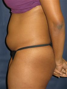 Liposuction Before Photo by Michael Eisemann, MD; Houston, TX - Case 28992