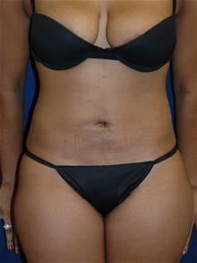 Liposuction After Photo by Michael Eisemann, MD; Houston, TX - Case 28992