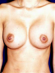 Breast Augmentation After Photo by Michael Eisemann, MD; Houston, TX - Case 28993