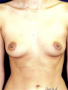 Breast Augmentation Before Photo by Michael Eisemann, MD; Houston, TX - Case 28993