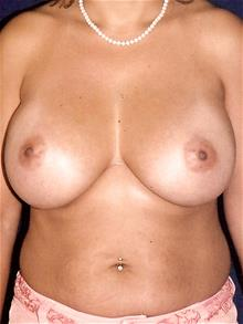 Breast Augmentation After Photo by Michael Eisemann, MD; Houston, TX - Case 28994