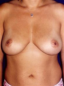 Breast Augmentation Before Photo by Michael Eisemann, MD; Houston, TX - Case 28994