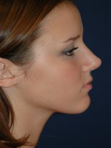 Rhinoplasty After Photo by Michael Eisemann, MD; Houston, TX - Case 28996