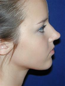 Rhinoplasty Before Photo by Michael Eisemann, MD; Houston, TX - Case 28996
