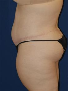 Tummy Tuck After Photo by Michael Eisemann, MD; Houston, TX - Case 28997