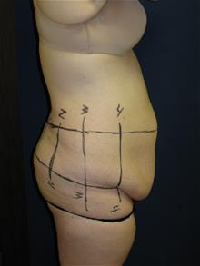 Tummy Tuck Before Photo by Michael Eisemann, MD; Houston, TX - Case 28997