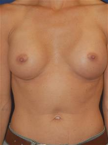 Breast Augmentation After Photo by Michael Eisemann, MD; Houston, TX - Case 28998
