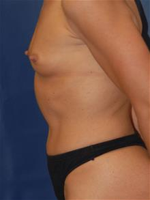 Breast Augmentation Before Photo by Michael Eisemann, MD; Houston, TX - Case 28998