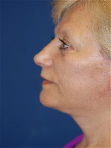 Facelift After Photo by Michael Eisemann, MD; Houston, TX - Case 29128