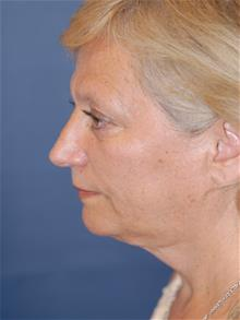 Facelift Before Photo by Michael Eisemann, MD; Houston, TX - Case 29128