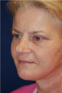 Facelift After Photo by Michael Eisemann, MD; Houston, TX - Case 29133