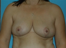 Breast Reduction After Photo by Jonathan Kramer, MD; Meridian, ID - Case 20014