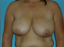Breast Reduction Before Photo by Jonathan Kramer, MD; Meridian, ID - Case 20014