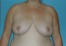 Breast Reduction After Photo by Jonathan Kramer, MD; Meridian, ID - Case 20015