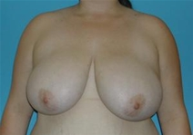 Breast Reduction Before Photo by Jonathan Kramer, MD; Meridian, ID - Case 20015