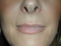 Dermal Fillers Before Photo by Jonathan Kramer, MD; Meridian, ID - Case 20016