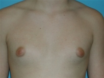 Male Breast Reduction Before Photo by Jonathan Kramer, MD; Meridian, ID - Case 20164