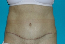 Tummy Tuck After Photo by Jonathan Kramer, MD; Meridian, ID - Case 20165