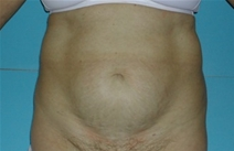Tummy Tuck Before Photo by Jonathan Kramer, MD; Meridian, ID - Case 20165