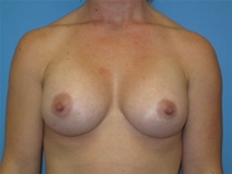 Breast Augmentation After Photo by Jonathan Kramer, MD; Meridian, ID - Case 22761