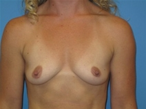 Breast Augmentation Before Photo by Jonathan Kramer, MD; Meridian, ID - Case 22761