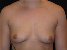 Breast Augmentation Before Photo by Jonathan Kramer, MD; Meridian, ID - Case 24357