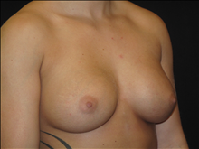 Breast Augmentation After Photo by Jonathan Kramer, MD; Meridian, ID - Case 24357