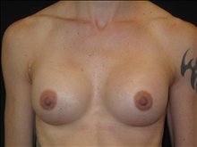 Breast Augmentation After Photo by Jonathan Kramer, MD; Meridian, ID - Case 24419