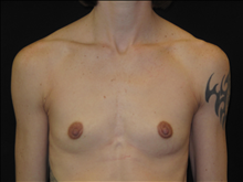 Breast Augmentation Before Photo by Jonathan Kramer, MD; Meridian, ID - Case 24419